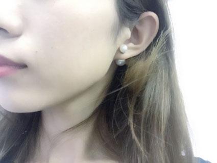 ニキビ_NEW青玉V_4