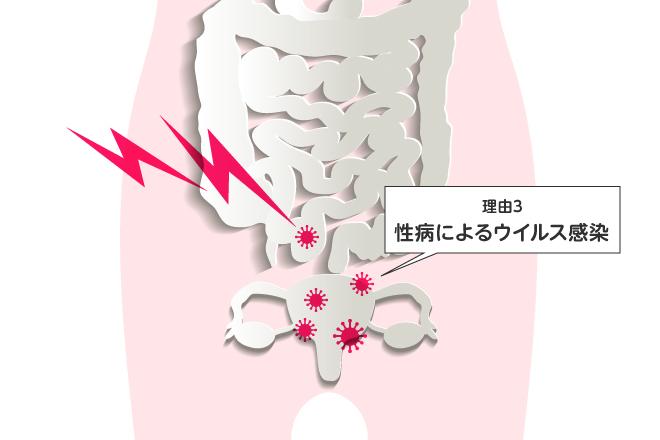 セックス後に腹痛や下痢 性病